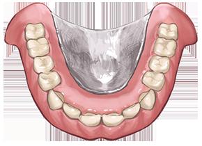金属床入れ歯の画像