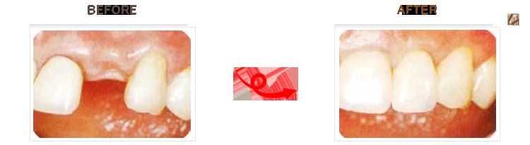 インプラントのビフォーアフター画像