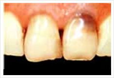 前歯部をジャケット冠治療前の画像