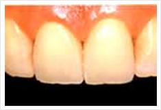 前歯部をジャケット冠治療後の画像