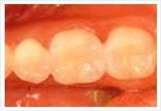臼歯部をインレー治療後の画像